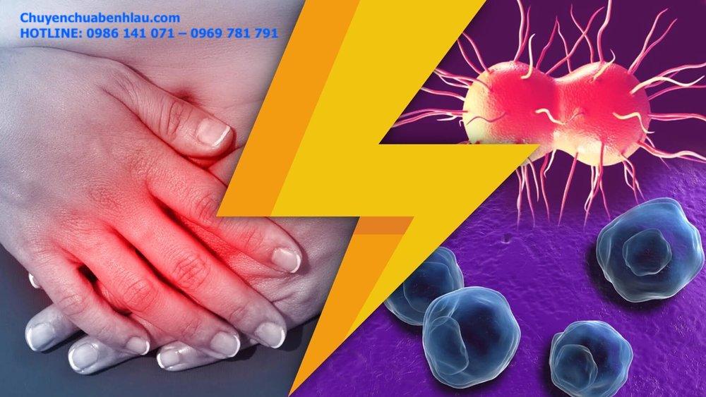 Bệnh viêm vùng chậu